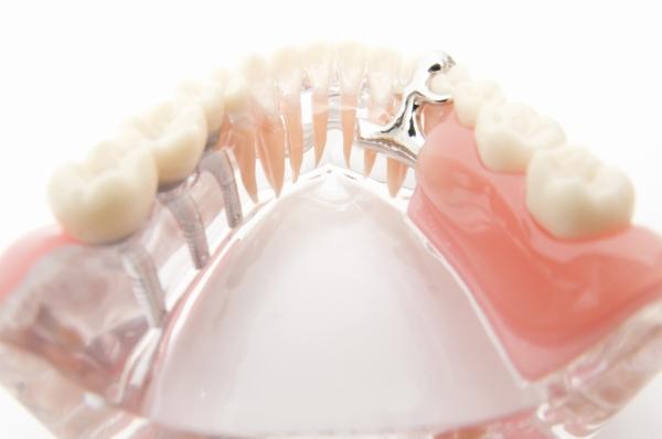 歯を失ってしまった時の3つの選択肢